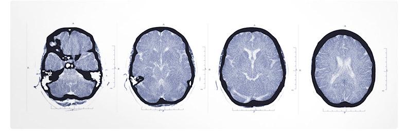 que-es-la-esclerosis-multiple-AMDEM